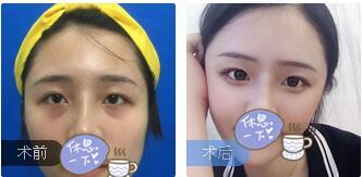 广州星团整形廖均平医生自体脂肪面部填充案例 术后85天脸型好看