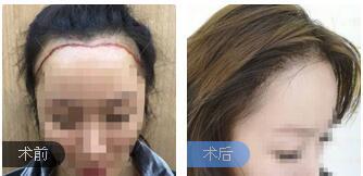 广州倍生整形杨晓医生发际线种植案例 术后5个月我可以扎马尾了