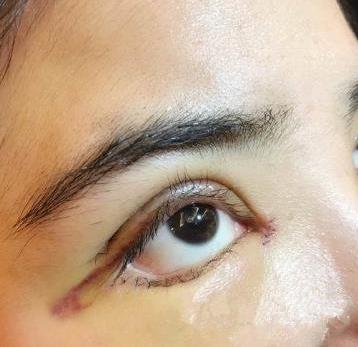 威海华怡医疗整形全切双眼皮案例
