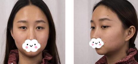 榆林美立方整形宋建成医生假体隆鼻+垫下巴+双眼皮案例 很惊喜