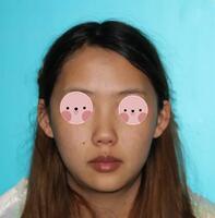 咸宁奥莱整形鼻综合案例 鼻综合效果挺满意,准备再去做个双眼皮