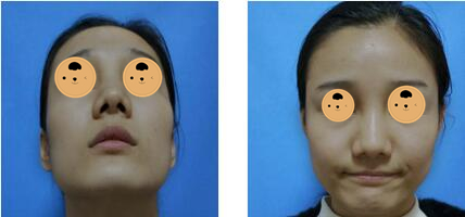 株洲华美整形刘宇医生硅胶隆鼻案例 整个五官都显得立体了