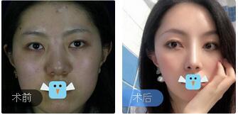 成都医大整形虞冬梅医生鼻部综合术案例 术后2个月鼻子很好看自然