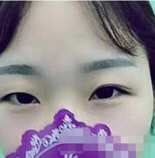长春艾尔丽整形赵广文医生双眼皮手术案例   术后实现完全蜕变