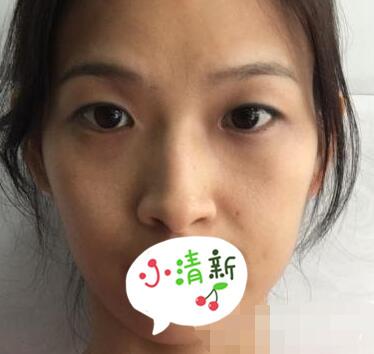 山西省整形医院刘晋元医生双眼皮案例 术后眼睛恢复得好看自然