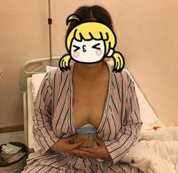 重庆美莱整形自体脂肪隆胸案例 没做隆胸之前我是A+,现在我是C啦