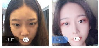 重庆铜雀台整形伍森林医生鼻部综合术案例 术后鼻型好看吸引人哟