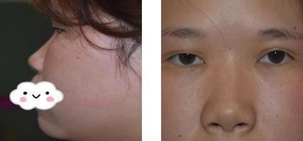 榆林美立方整形鲁开化医生肋软骨隆鼻案例 现在自拍没什么压力了