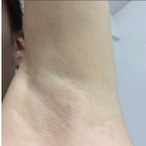 青岛市黄岛区第二中医整形激光脱腋毛案例