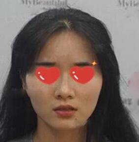 成都中科美整形劉祥輝醫生玻尿酸豐下巴案例 是我想不到的精致呀