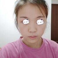 太原华美整形赵景鹏医生鼻综合案例 闺蜜说她对我的鼻子有点心动
