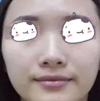 运城丽都整形杨顺新医生鼻综合案例 感觉自己变得更加洋气了