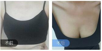 长沙爱思特整形杨千里医生自体脂肪隆胸案例 术后胸部摸起来很软