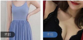 长沙爱思特整形胡朝辉医生假体隆胸案例 术后90天胸型性感又柔软