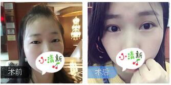 上海九院整形顾钏医生全切双眼皮案例 术后60天眼神变得美美哒