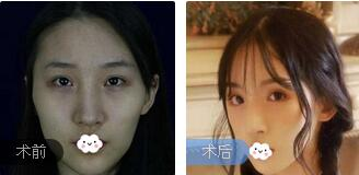 北京八大处整形祁佐良医生3D颧骨缩小案例 术后半年脸型很容和