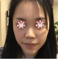 重庆爱丽美整形董海秦医生耳软骨隆鼻案例 这次美丽又安全