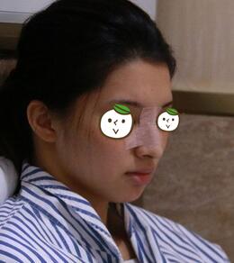 深圳非凡整形鼻综合案例 分享我这两个月的干货和心得