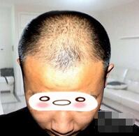 北京美莱整形头发种植案例 我孩子也是颜控,喜欢我现在的样子