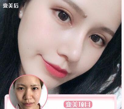 深圳双眼皮整形专家――杨伟杰  帮助万千爱美者达成夙愿