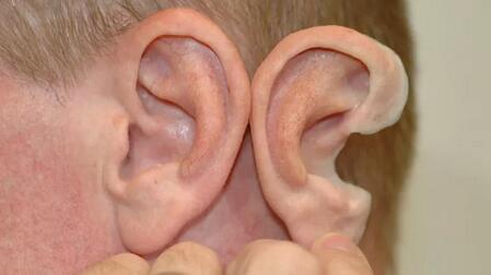 外耳再造与听力重建经典技术交流会暨组织工程技术造耳展示会