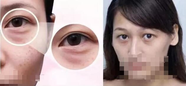 黑眼圈除了滤镜能消除