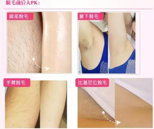 炎热夏季,大家的腋下毛毛都清理好了吗?