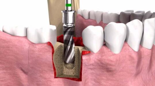 种植牙术后不能忽略对它的护理哦!