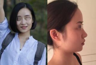 上海九院整形下頜角磨骨案例 術后變小V型臉