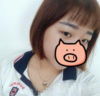 北京田永成整形雙眼皮案例 術后恢復我的自信心啦