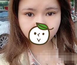 北京東方百合整形王世勇醫生雙眼皮修復案例 20多天肉條就消失了