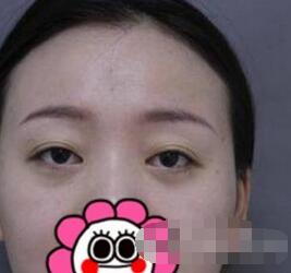 杭州芯美昕整形雙眼皮案例 術后76天的真實感受分享給你們