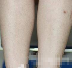榆林美立方整形激光脱腿毛案例