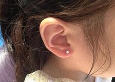 为了防止穿耳洞后会出现感染的情况,应如何做好穿耳洞后的护理呢