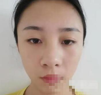 寧波友好整形耳軟骨隆鼻案例 完美的側臉殺美哭朋友