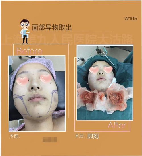 面部注射物取出的方法