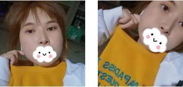 目前流行的隆鼻方法有哪些?上海隆鼻的费用怎么算?效果怎么样?