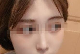 西安艾美整形隆鼻案例 一個月后成就了這么美麗的自己