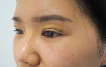 成都美極整形雙眼皮案例 20多天了,恢復蠻理想的