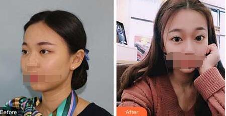 成都米亞整形雙眼皮案例 術后顏值大漲