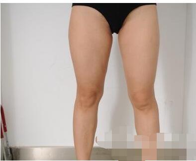 成都蓉雅整形吸脂案例 性感細長的美腿