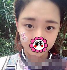 西安邵錦弘醫生醫療美容診所雙眼皮案例 現在的眼睛靈動深邃