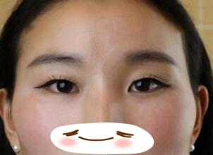 大慶邢立輝醫療整形雙眼皮案例 肉眼可見感覺眼睛變大很多