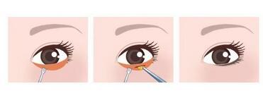 这类型的眼袋眼霜是很难消除的!上海祛眼袋的费用是多少?