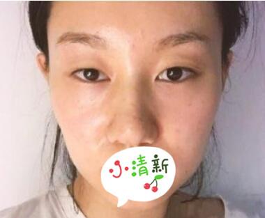 上海容妍整形隆鼻案例