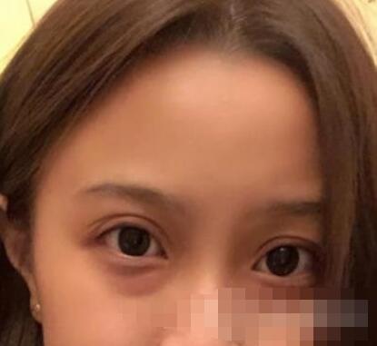 天津口腔醫院整形雙眼皮案例 術后分享親身體驗變美反饋