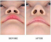 如何选择技术好的鼻部整形医生?成都隆鼻医院、医生测评