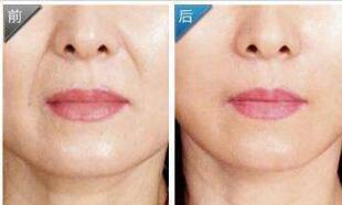 北京艺星整形玻尿酸填鼻唇沟案例 术后一年半载效果依旧年轻貌美