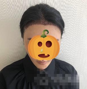 南京科发源整形头发种植案例