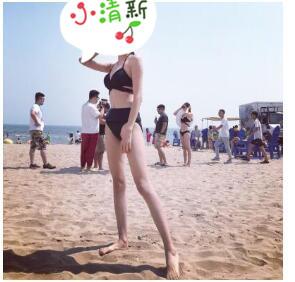 四川华人医联整形全身吸脂案例